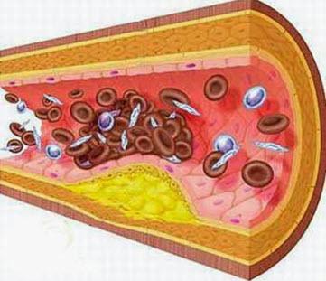 Giảm lượng cholesterol