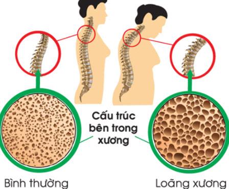 So sánh giữa xương bình thường và xương loãng