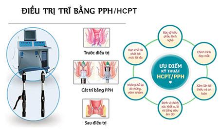 Điều trị trĩ bằng phương pháp PPH