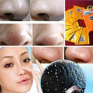Mặt nạ lột mụn đầu đen Shiseido