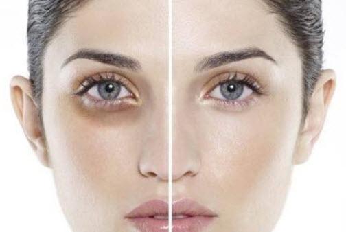 Hiệu quả chữa mắt thâm
