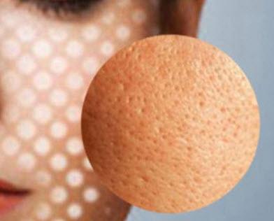 Lỗ chân lông to ở mũi và má