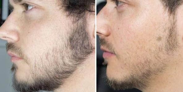 Thuốc mọc râu là gì