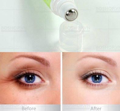 Tác dụng kem dưỡng mắt Simple